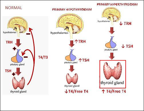 Diagram of normal thyroid function, hypothyroidism and hyperthyroidism